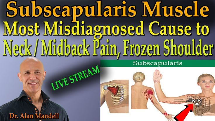 Subscapularis Muscle - Most Misdiagnosed Cause to Neck/Midback Pain & Frozen Shoulder (Dr Mandell) - YouTube