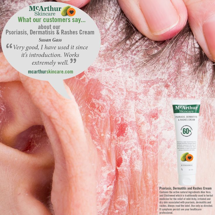 """What our customers say about our Psoriasis, Dermatisis & Rashes Cream...  Susan Gass  """"Very good, I have used it since its introduction. Works extremely well.""""  Read More: mcarthurskincare.com/products/psoriasis-dermatitis-rashes-cream-75g/   McArthur Skincare - Psoriasis, Dermatitis and Rashes Cream  Contains the active natural ingredients Aloe Vera, and Chickweed which is traditionally used in herbal medicine for the relief of mild itchy, irritated and dry skin associated with psoriasis..."""