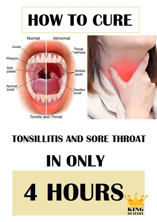 Natural Way To Treat A Sore Throat