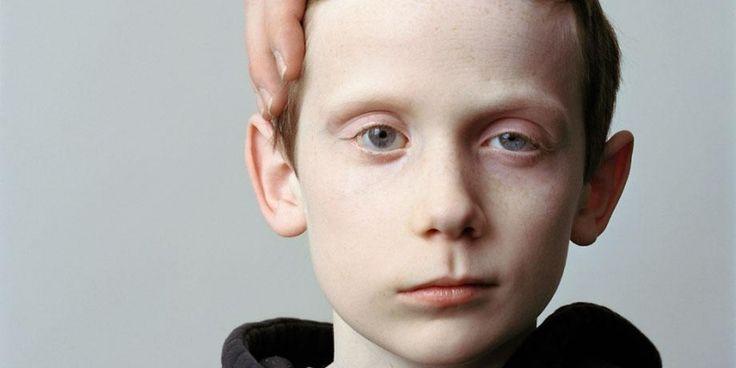 """É uma paralisia de metade da cara, de aparecimento súbito, sem qualquer razão aparente e sem outras queixas. Este problema resulta de uma paralisia aguda unilateral de um nervo chamado """"facial"""", designando-se também """"paralisia do facial"""" (ou """"de Bell"""")"""