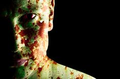There's a story plot here: freakiest medical conditions, zombie
