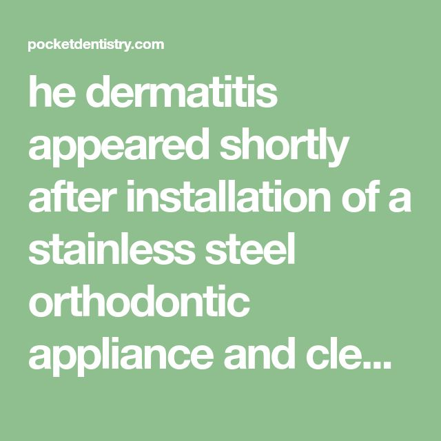 he dermatitis appeared shortly after installation of a stainless steel orthodontic appliance and cleared when the appliance was removed. Rare cases of systemic contact dermatitis from chro