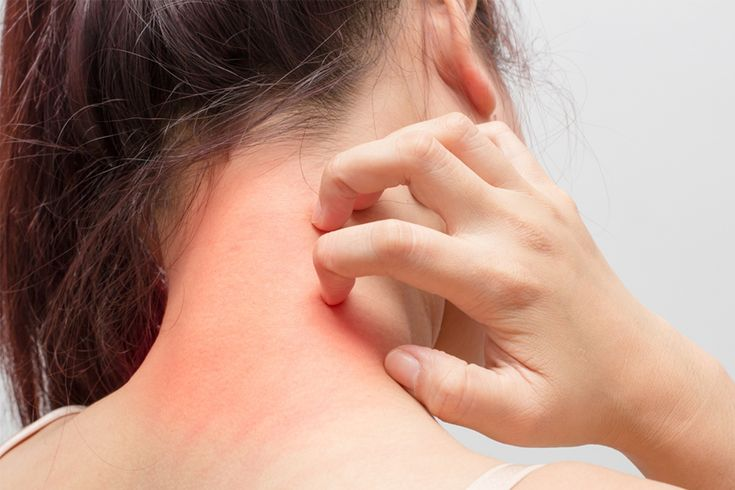 Itching Skin Problems US People Frequently Experienced.  #skincare #itching #skinproblems