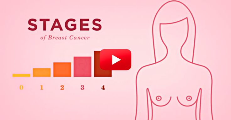 This List Breaks Down The Stages Of Breast Cancer And What They Mean | The Breast Cancer Site Blog
