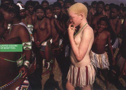 Benetton Albinos africanos 2008