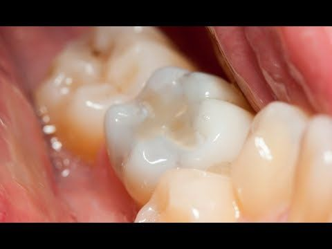 Composite Dental Filling How To