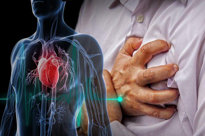 Inilah pertolongan pertama pada serangan jantung, tak usah panik #seranganjantung #jantung #kesehatan