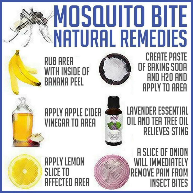Natural bug bite remedies...baking soda works ^_^ just did that