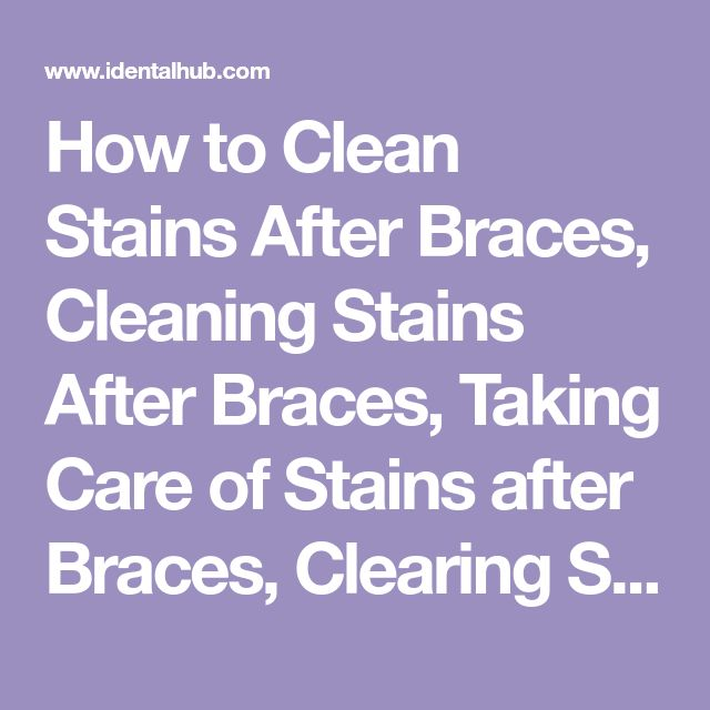 How to Clean Stains After Braces, Cleaning Stains After Braces, Taking Care of Stains after Braces, Clearing Staining from Teeth after Braces