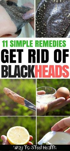 11 Simple Remedies to Get Rid of Blackheads