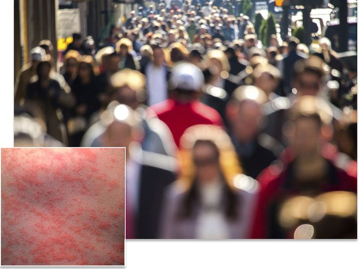 """Measles Outbreak Traced to Fully Vaccinated Patient for First Time """"Measles Mary"""" raises questions about how long vaccine-given immunity lasts"""