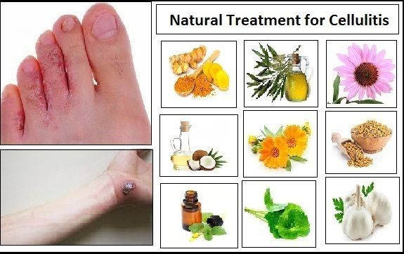 Natural Treatment for Cellulitis using with Herbal Properties