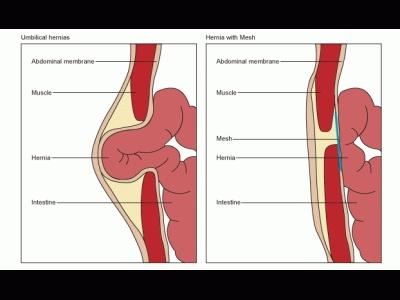 umbilical hernia http://www.i-medic.ro/files/imagecache/400x300/hernia%202.gif