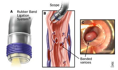 esphageal varecial ligation | Figure 5. Endoscopic variceal band ligation of esophageal varices