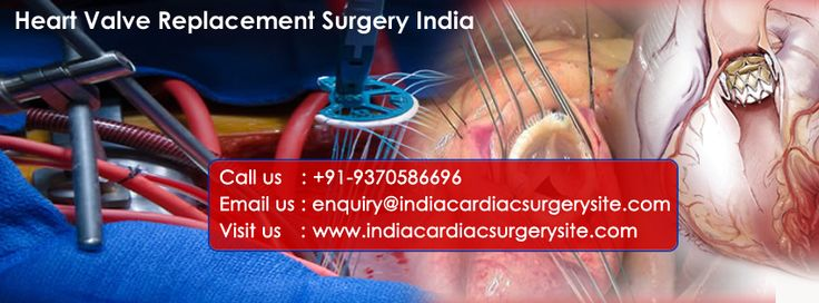 India boasts high rank when it comes to cardiac care. Heart valve replacement surgery in India has been the specialty of Indian cardiac hospitals. These hospitals catering heart valve replacement surgery in India are equipped with one of the best facilities that are governed by the state of art technologies.   http://www.indiacardiacsurgerysite.com/blog/health-care/where-to-get-the-best-heart-valve-replacement-in-india/