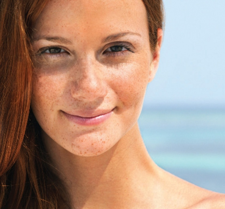 How Sun Damage Presents in the Skin