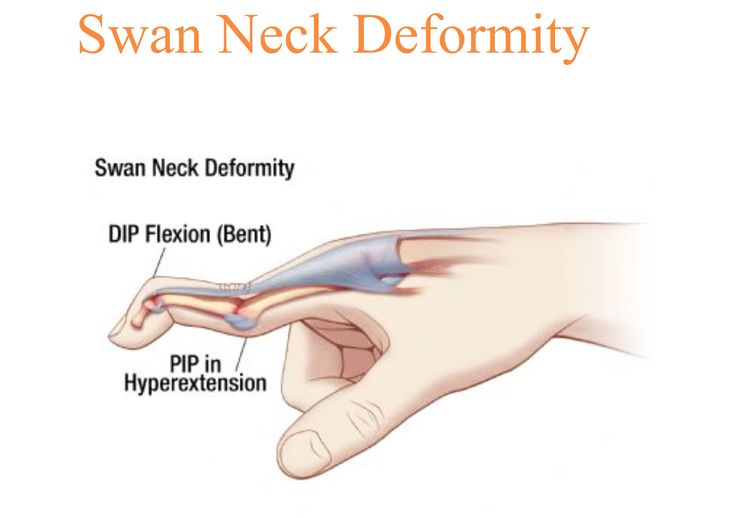 Swan Neck Deformity Learn Medicine Pinterest Swans