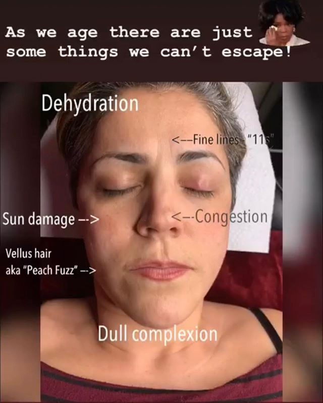 Aging Is A Reality Lets Face It Come See Us For Skin Care Treatments That Change The Way You Age Nutleynj Ledfac Led Facial Skin Care Treatments Skin Care