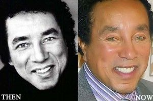 Smokey Robinson Plastic Surgery 300x198 Emily Maynard Plastic Surgery Before and After Photo