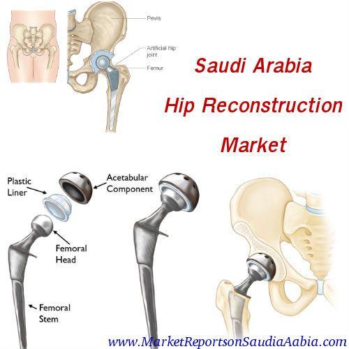#SaudiArabia #HipReconstruction Market