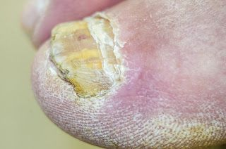 A fungal nail infection starts to develop when fungus starts attacking the toenail, fingernail, or the nail bed. Fungi can attack the nails through tiny cuts within the skin or through the openings between the nail bed and nail. If you have a healthy body, the infection will not cause any serious problems. However, it may hurt, look bad, or damage your nail bed. A nail infection may lead to serious health problems if you have a weak immune system or suffer from diabetes.
