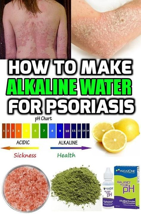 You just can't ignore the importance of drinking alkaline water, full of vital minerals for psoriasis treatment. #Alkalinewaterpsoriasis #Alkalinedietpsoriasis