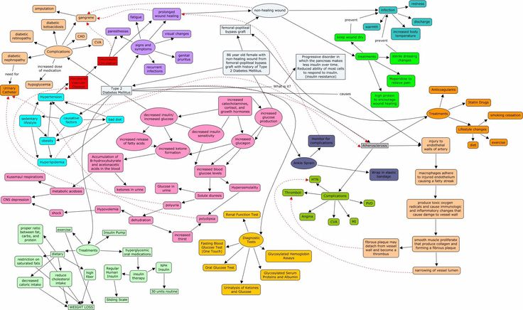 Diabetes Mellitus Type 2 Concept Map with detail in 2020