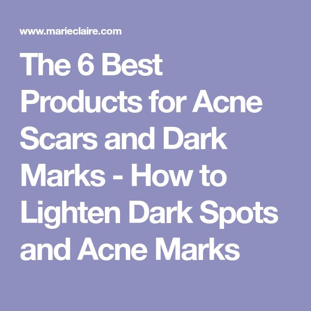 The 6 Best Products for Acne Scars and Dark Marks - How to Lighten Dark Spots and Acne Marks