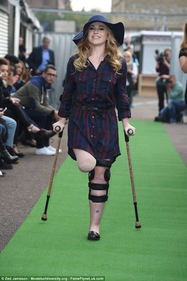 Dancer Lost Her Leg In An Accident But Went On To Achieve Something Impossible.