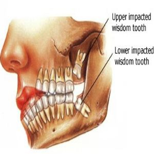 Tips For Speedy Wisdom Teeth Extraction Recovery