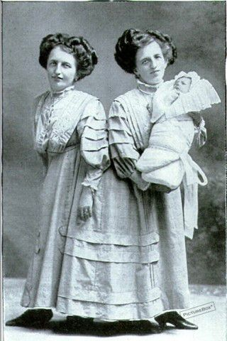 Conjoined twins Josefa & Rosa Blazeh with Rosa's son, 1910.  They lived from 1878-1922.  I don't know of any other conjoined twin giving birth.