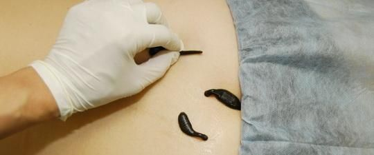 Treatment with leeches
