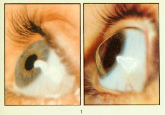 """Keratoconus (also known as """"conical cornea"""") is a degenerative disease of the eyes that manifests itself as a gradual degradation of the cornea into a more conical form than the typical eyeball.  This condition can cause extreme nighttime vision distortion, sensitivity to light, itching, """"ghost"""" images and some distortion of daytime vision."""
