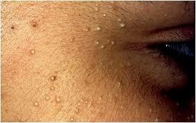 Huidpraktijk Rosenberg Skin Clinic ® - Acne behandeling / Huidtherapie + webshop