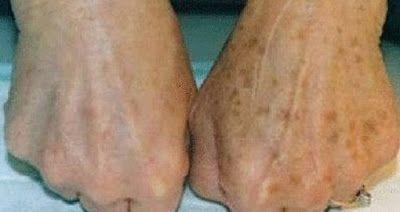 4 remedios para que te despide de las manchas en las manos. - TuSalud.Info