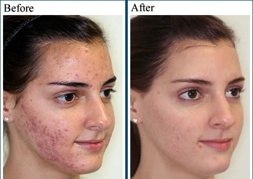 Treatment Options For Cystic Acne Cystic Acne On Chin