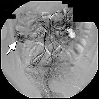 Arteriogram of patient with acute massive gastrointestinal bleeding, localizing the source of the bleeding to the ascending colon