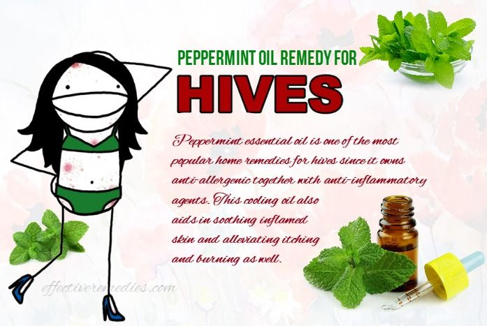 17 Best Natural Home Remedies For Hives