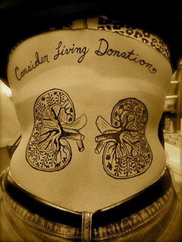 kidney donation @Vicky Lee Lee Mccleskey-Dilbeck