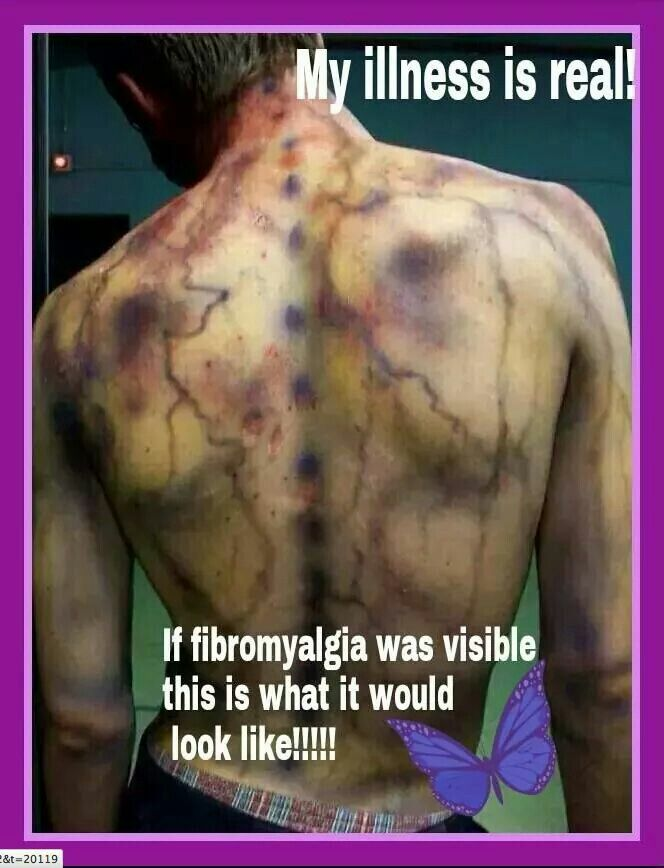 fibromyalgia the painful truth Fibromyalgia it's time you know the truth the fm/a ® test around the many painful or tender areas mental/brain fogginess poor sleep.
