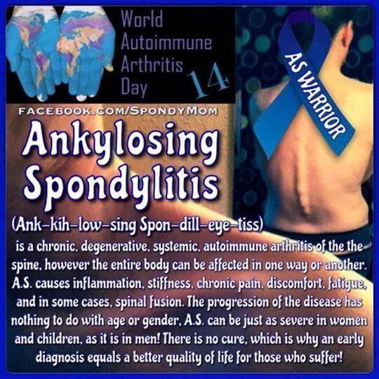 Natural Supplements For Ankylosing Spondylitis