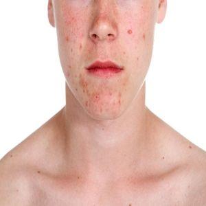 Acne Antibiotics...