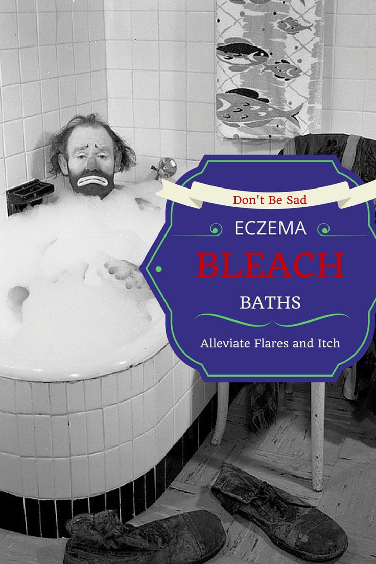 Bleach baths can be an incredibly effective part of your eczema treatment plan! It can help with flare, itch, and infection.