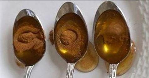 To, co s organismem udělá med a skořice, je fenomenální! - Page 2 of 2 - epochamagazin