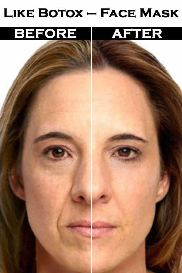 Like botox – face mask effects