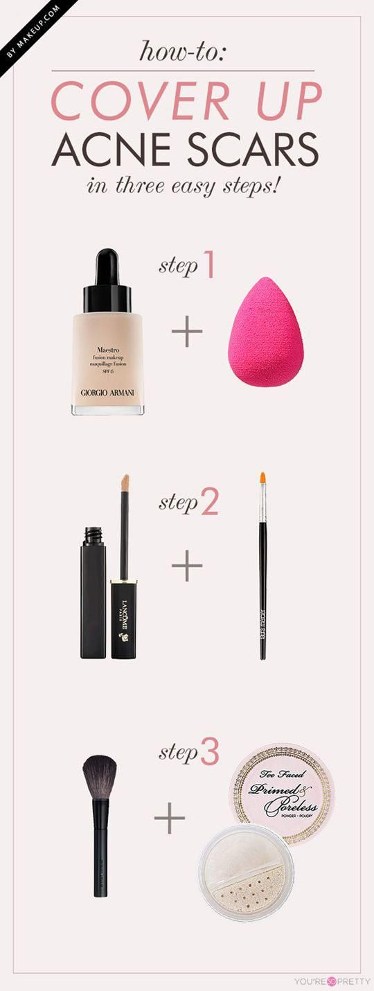 Beauty Hack: How to Cover Up Acne Scars   Three simple steps that will help you cover acne scars.    Makeup Tips and Tutorials from youresopretty.com #MakeupTips #youresopretty