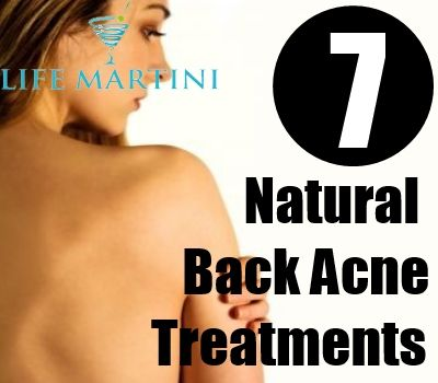 7 Natural Back Acne Treatments How to cure acne: http://acnenotanymore.com/