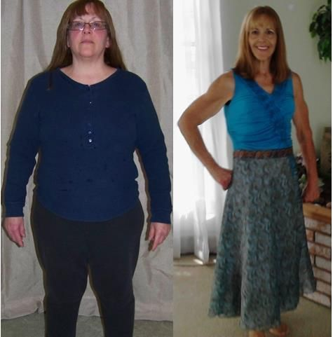 Cindy dropped 70 LBS and is living Diet Free! www.Mydietfreelife.com