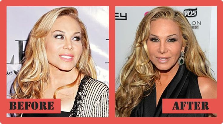 Adrienne Maloof Plastic Surgery Before And After Adrienne Maloof Plastic Surgery #AdrienneMaloofPlasticSurgery #AdrienneMaloof