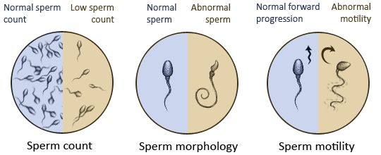 Sperm Count is one of the most important characteristics in male fertility. Research shows that in more than half of infertility issues in couples, low sperm count is the cause. According to the World Health Organization, sperm count of more than 15 million sperms per milliliters in considered normal. In semen analysis which is a test for sperm quality to find the underlying cause of male infertility, the following parameters are measured: sperm count, sperm motility, sperm morphology…